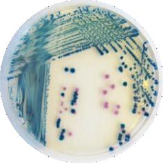 CHROMagar Y.enterocolitica